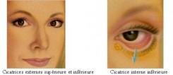 cicatrice blepharoplastie