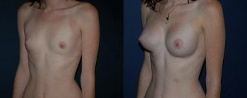 breast-augmentation-with-prostheses-2_8513_duologo