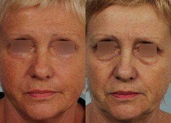 cervico-facial-lift-2_8493_duologo
