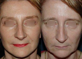 cervico-facial-lift-3_8483_duologo