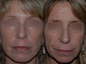 cervico-facial-lift_8499_duologo