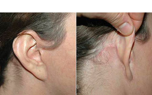 cicatrice otoplastie