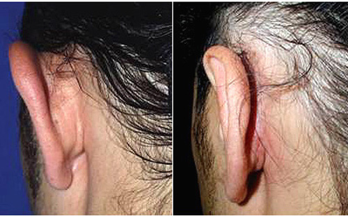cicatrices otoplastie