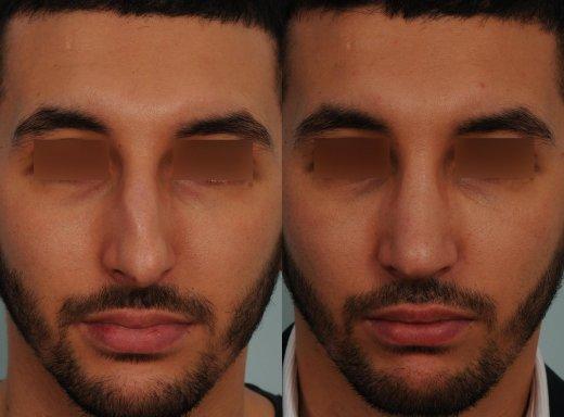 correction-dun-nez-tres-devie-avec-bosse-importante-par-dr-makhoul_6486_duologo