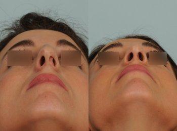 deviation-de-cloison-nasale-sur-nez-un-peu-fort_7026_duologo