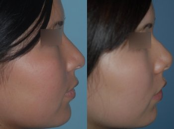 ethnic-rhinoplasty-asian-profile_8339_duologo