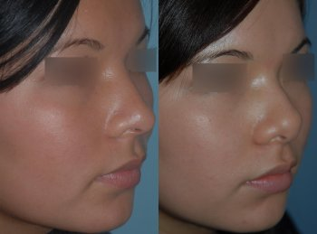 ethnic-rhinoplasty-asian-profile_8341_duologo