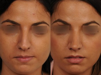 ethnic-rhinoplasty-in-women_8814_duologo