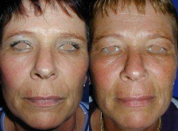 eyelid-surgery_8273_duologo