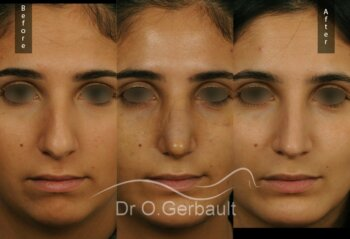Evolution rhinoplastie ultrasonique profiloplastie