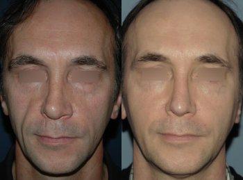 lipofilling-face_8782_duologo