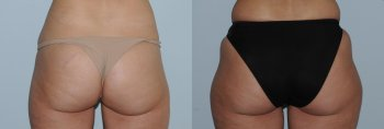 liposuction-belly-and-hips_8455_duologo