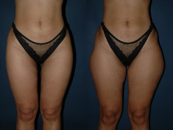 liposuction-outside-thighs_8449_duologo