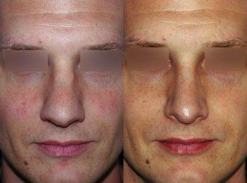 mans-nose-too-wide_2913_duologo