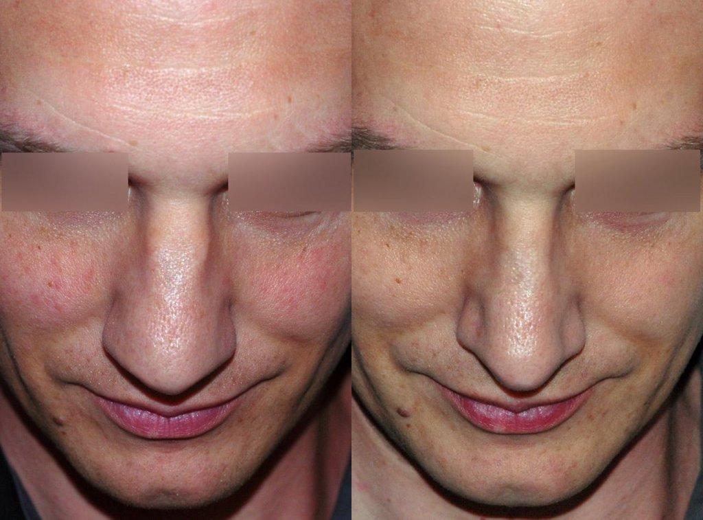 mans-nose-too-wide_2915_duologo