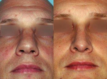 mans-nose-too-wide_2917_duologo