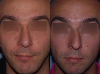 men-rhinoplasty-and-harmonization-profiloplasty_8331_duologo