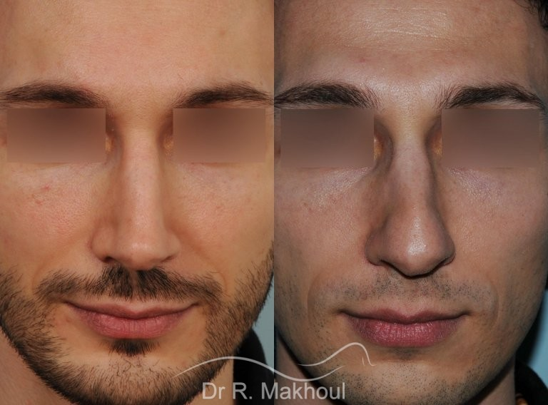 men-structural-rhinoplasty_8375_duologo