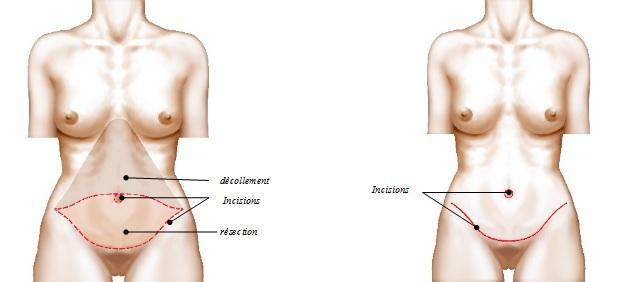 plastie abdominale cicatrice