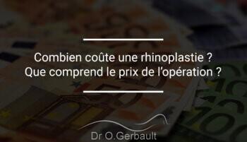 Prix d'une rhinoplastie et tarif