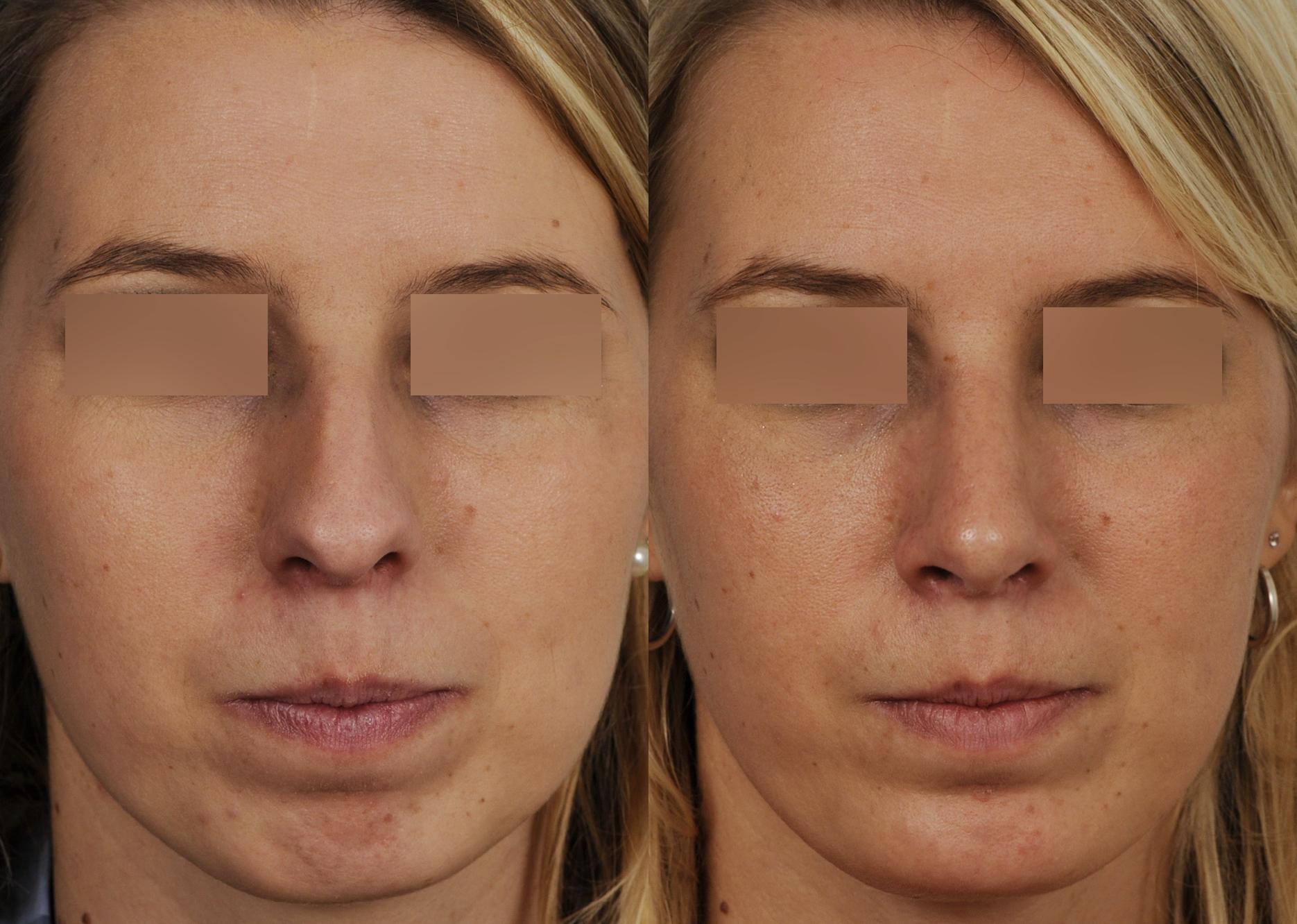 profiloplastie-avancee-du-menton-par-prothese_5468_duologo