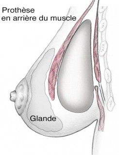 prothese mammaire en arrière du muscle position retromusculaire