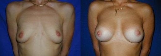 ptose-mammaire-avec-implants_2512_duologo