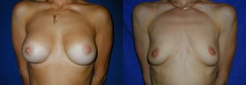 ptosis-with-breast-implants_8439_duologo