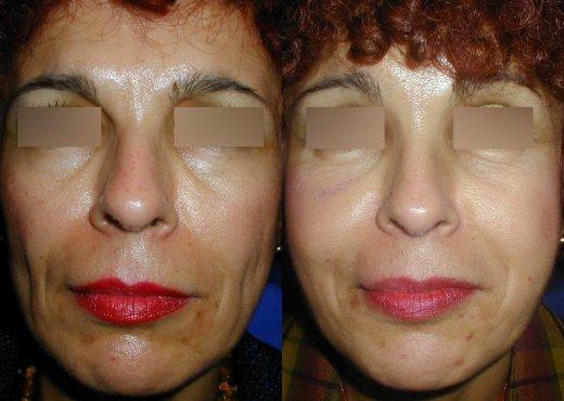 rajeunissement-facial-lipofilling_3513_duologo