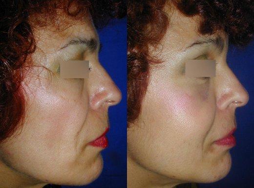 rajeunissement-facial-lipofilling_3515_duologo