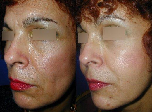 rajeunissement-facial-lipofilling_3517_duologo