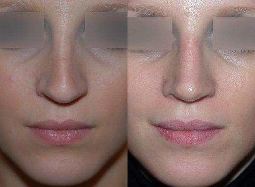 rhinoplastie-sur-peau-fine-bec-de-corbin_2395_duologo