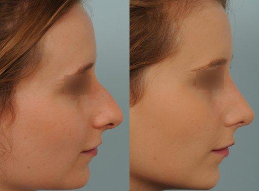 rhinoplastie-sur-peau-fine-et-bosse_5075_duologo