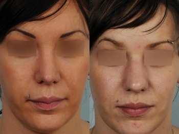 rhinoplasty-on-thick-skin-nose-too-projected_8351_duologo