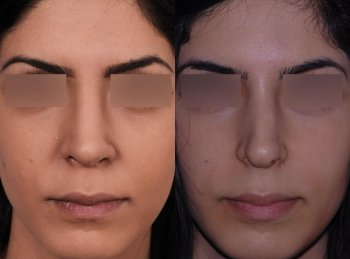 secondary-ethnic-rhinoplasty_8764_duologo