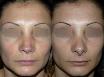secondary-rhinoplasty_8287_duologo