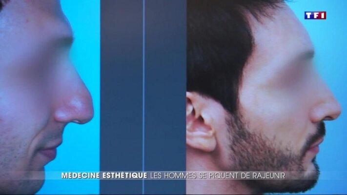 TF1 20h : Chirurgie esthétique chez les hommes